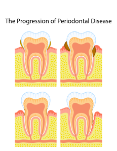 Peridontal Disease