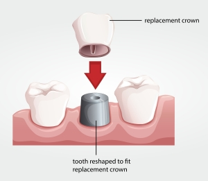 Implant Crown